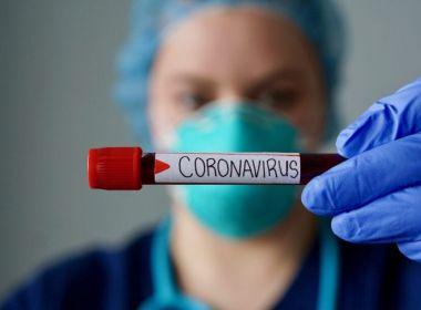 Resultado de imagem para Bahia registra 17 casos suspeitos de coronavírus, diz Sesab; nove deles foram excluídos